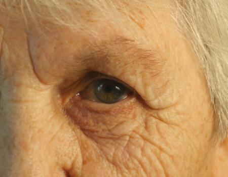 New test could help prevent vision loss after cataract surgery