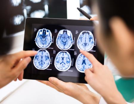 Doctors to harness AI to diagnose dementia