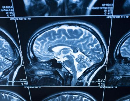Brains lose elasticity through ageing, study shows