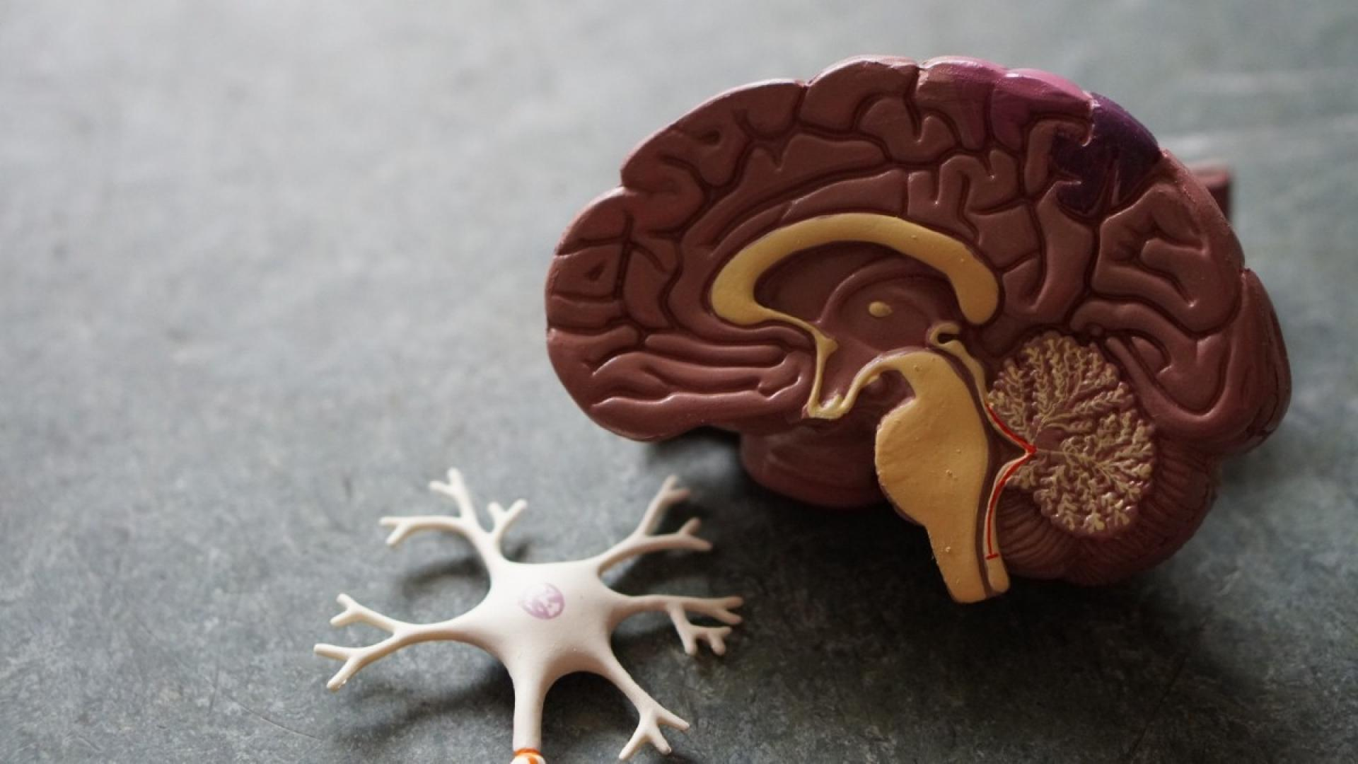 Alzheimer's research to focus on condition's subtypes
