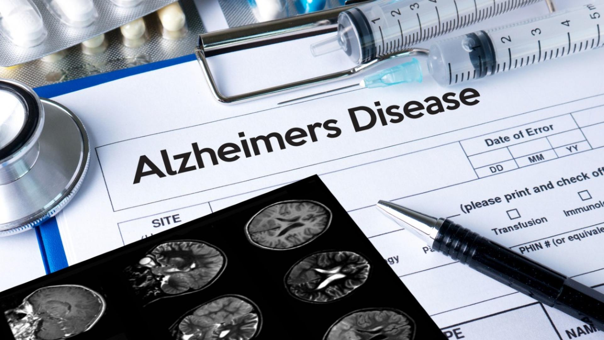 Scientists turn off Alzheimer's protein in human brain cells