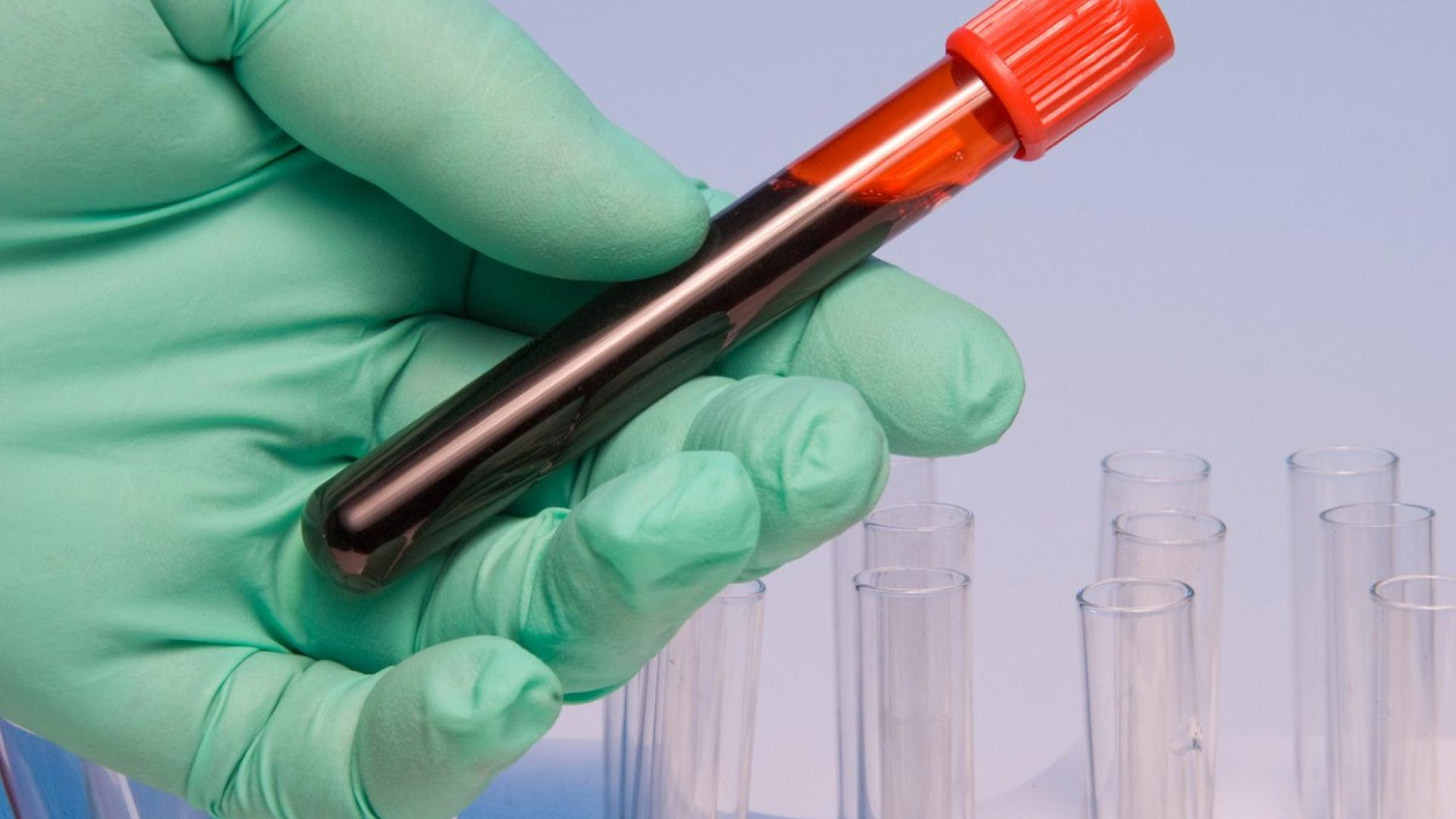 New blood test developed to diagnose Parkinson's disease
