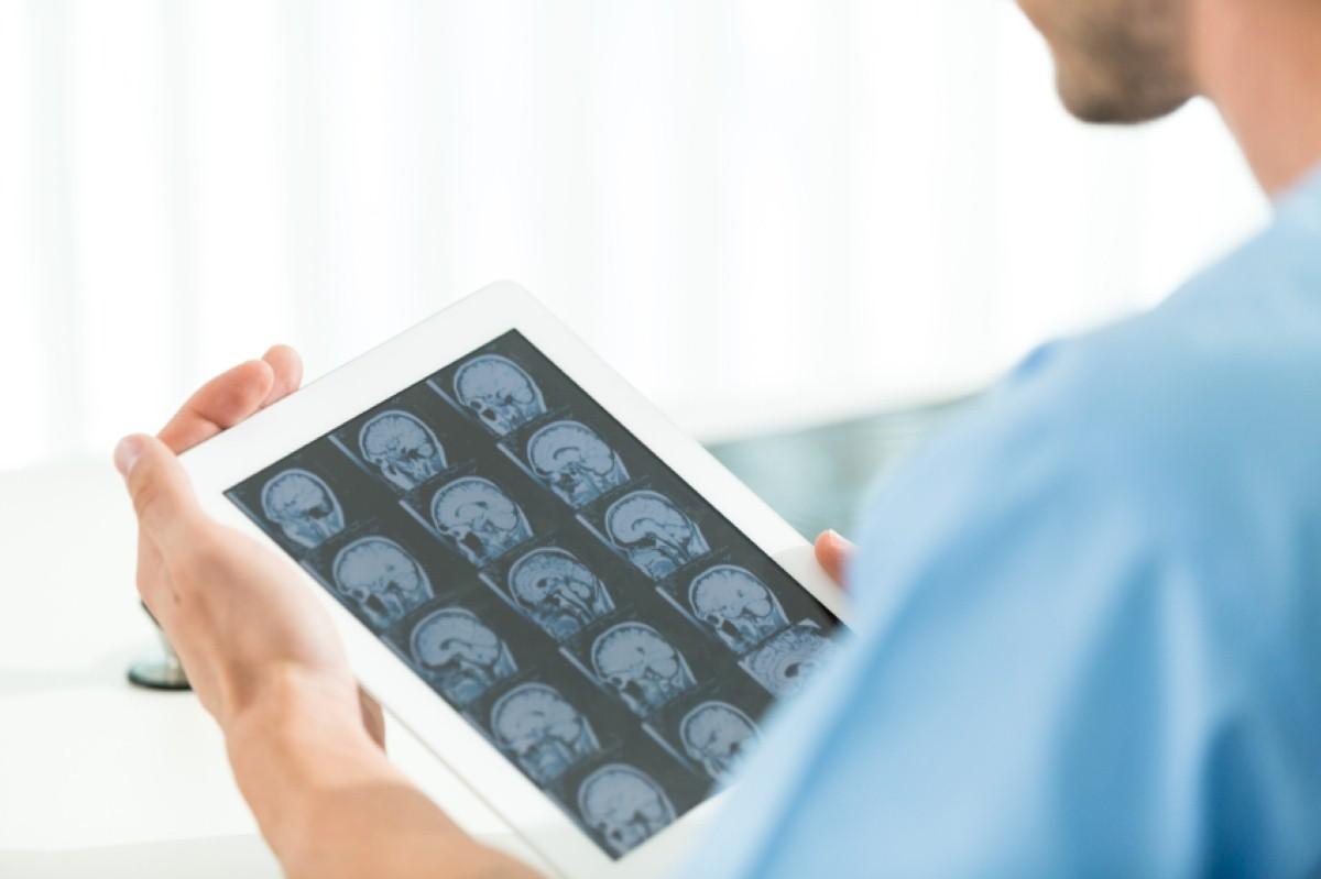 Brain imaging gives further insight on Alzheimer's decline