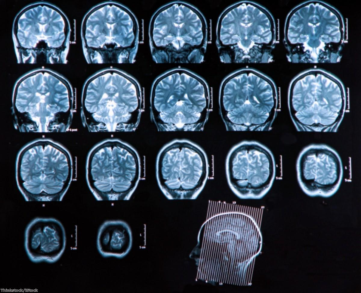 Brain scanner 'to help dementia fight'