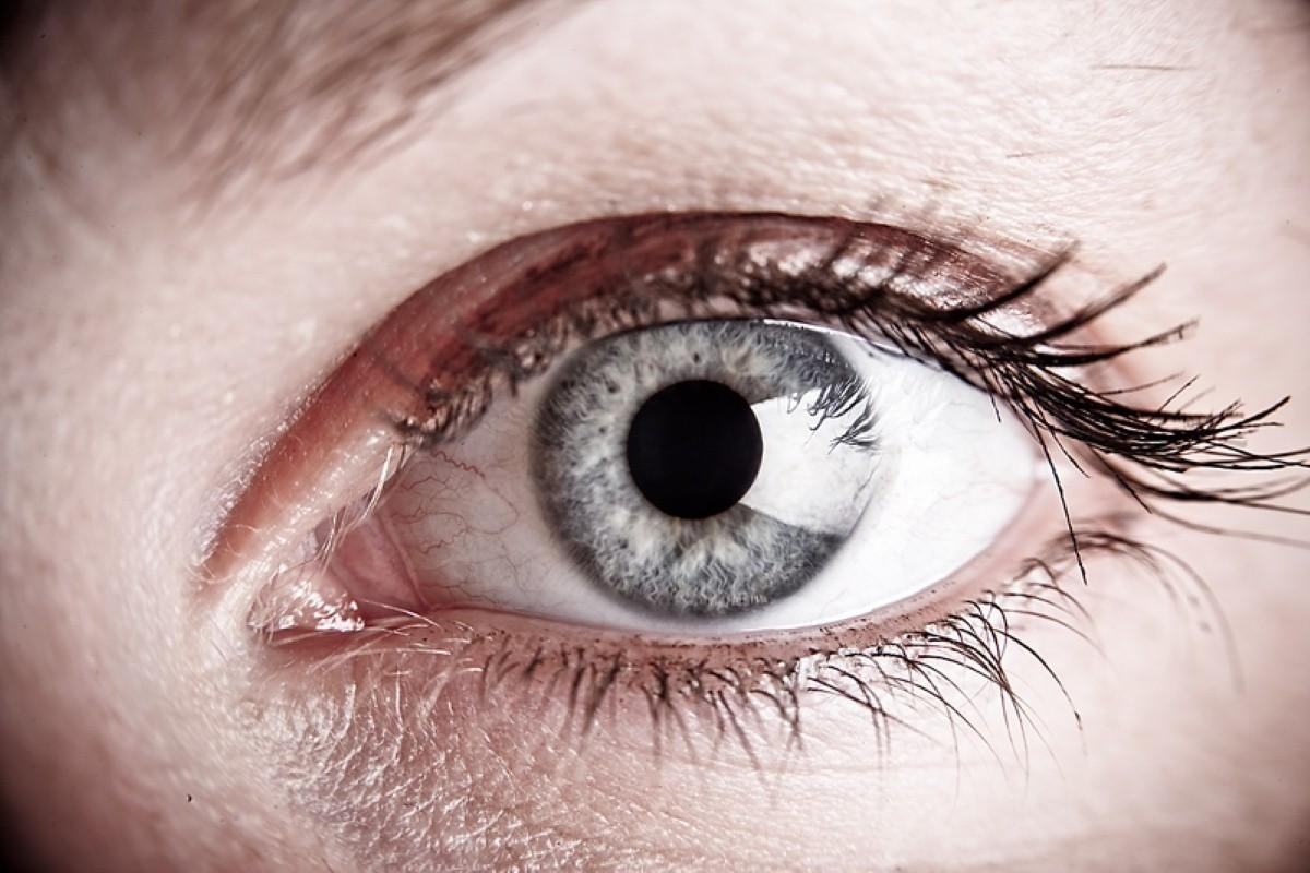 Could an eye test determine stroke risk?