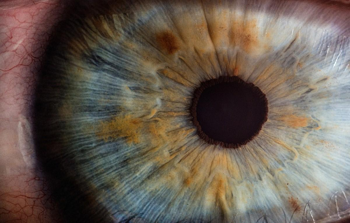 Scientists 'could count blood vessels in the eye' to spot dementia early