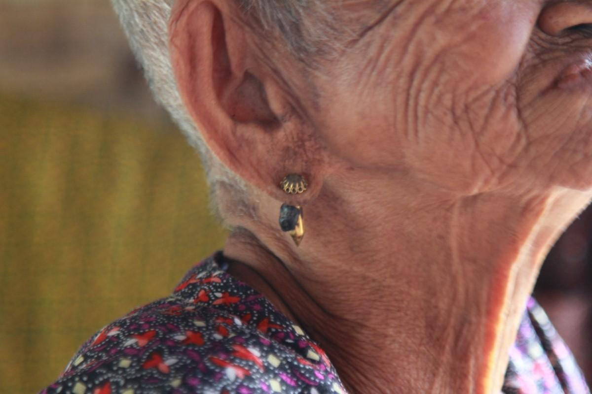 Innovative vibrating patch could help combat hearing loss