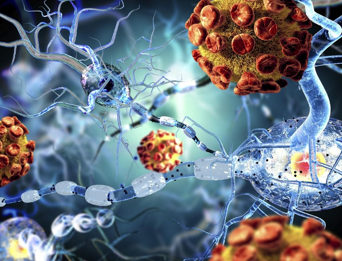 Cure for HIV near after scientific breakthrough