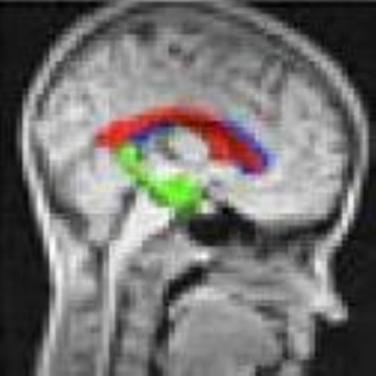 Brain pathway 'may aid early diagnosis of dementia'