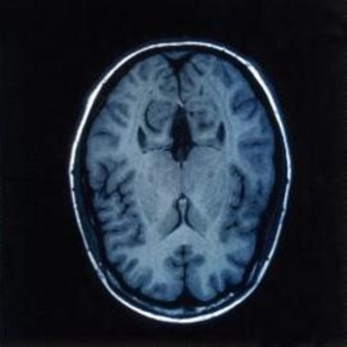 Alzheimer's 'due to low clearance of plaques'