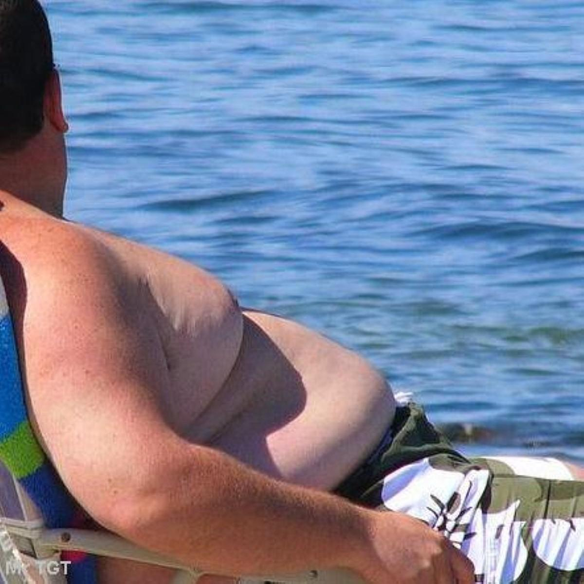 Duration of obesity 'linked to mortality'
