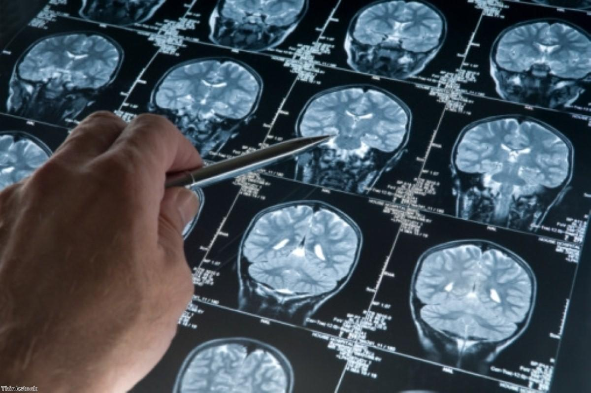 New MRI test 'could improve Alzheimer's diagnoses'