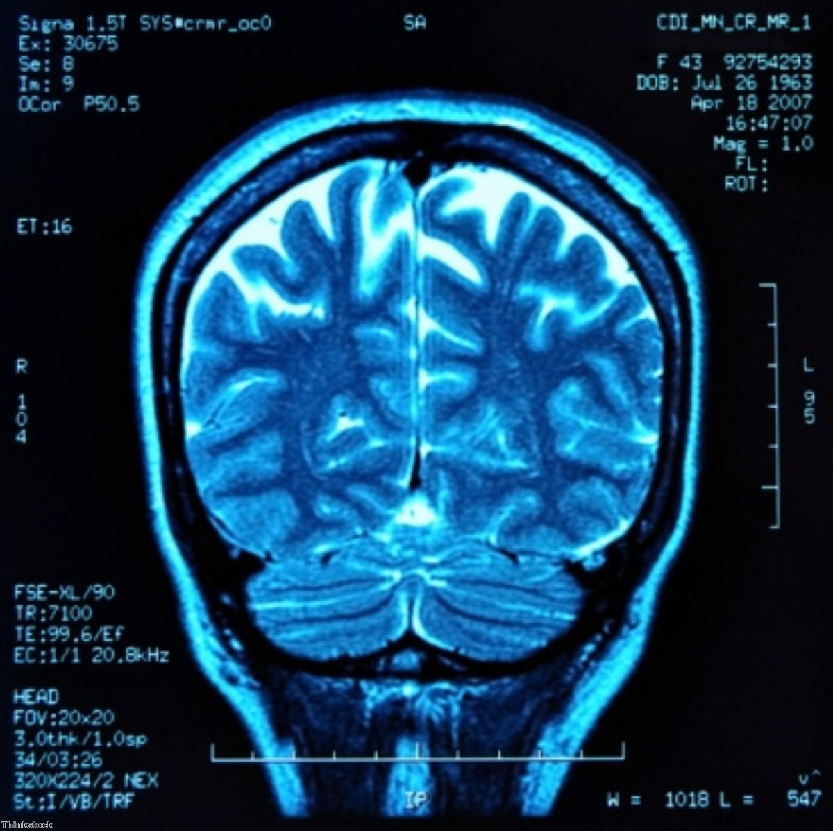 Alzheimer's indicator could affect brain function in healthy adults