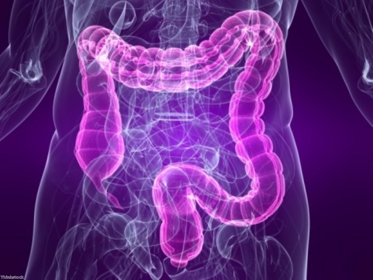 Over-65s could benefit from virtual colonoscopy