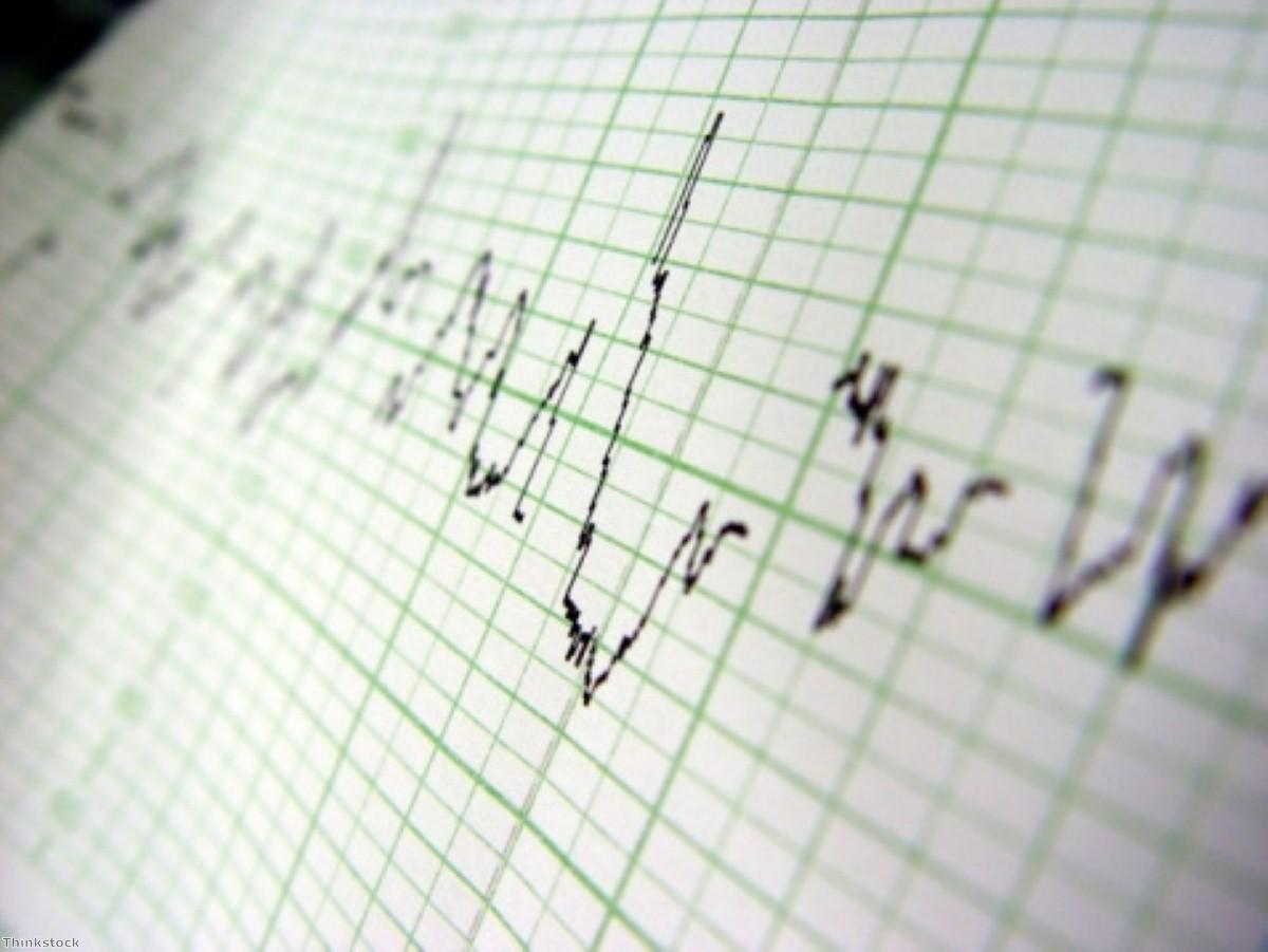 Meeting cardiovascular factors lowers death risk