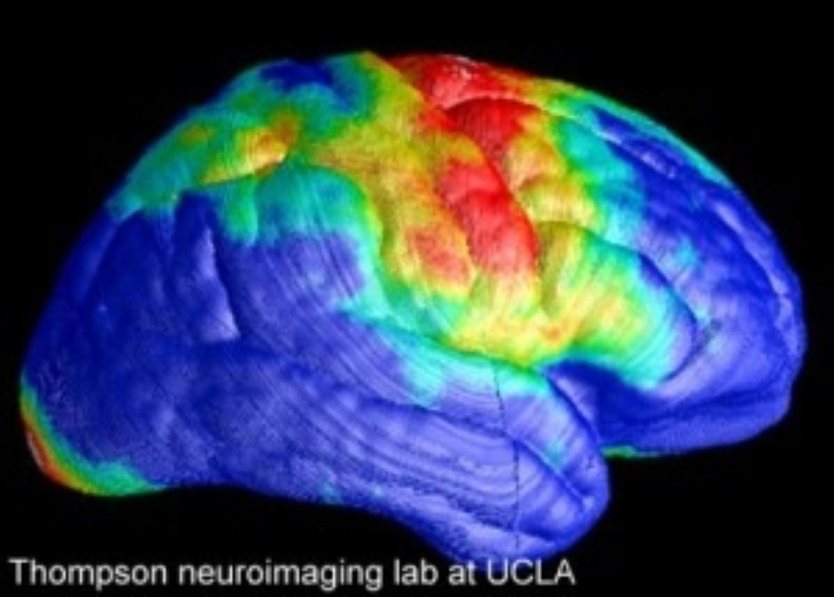 Neural decline mechanism that causes HIV-associated dementia identified