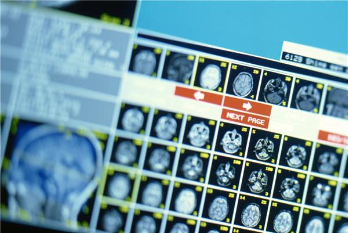 Head injuries 'do not lead to Alzheimer's or dementia'